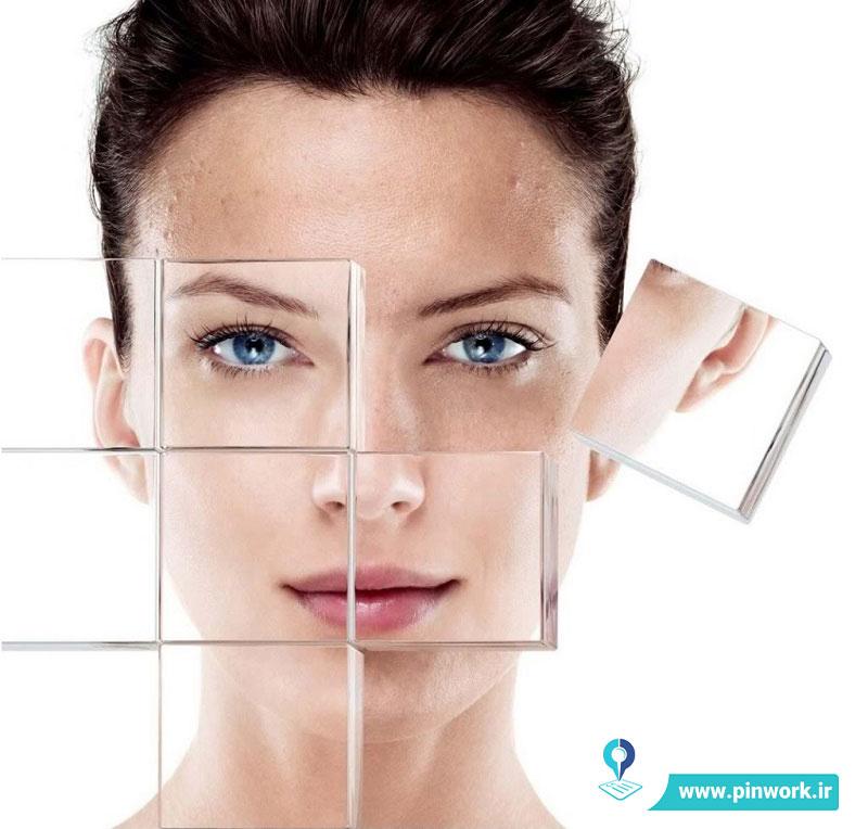 انواع لیزر صورت