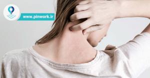 تشخیص پسوریازیس